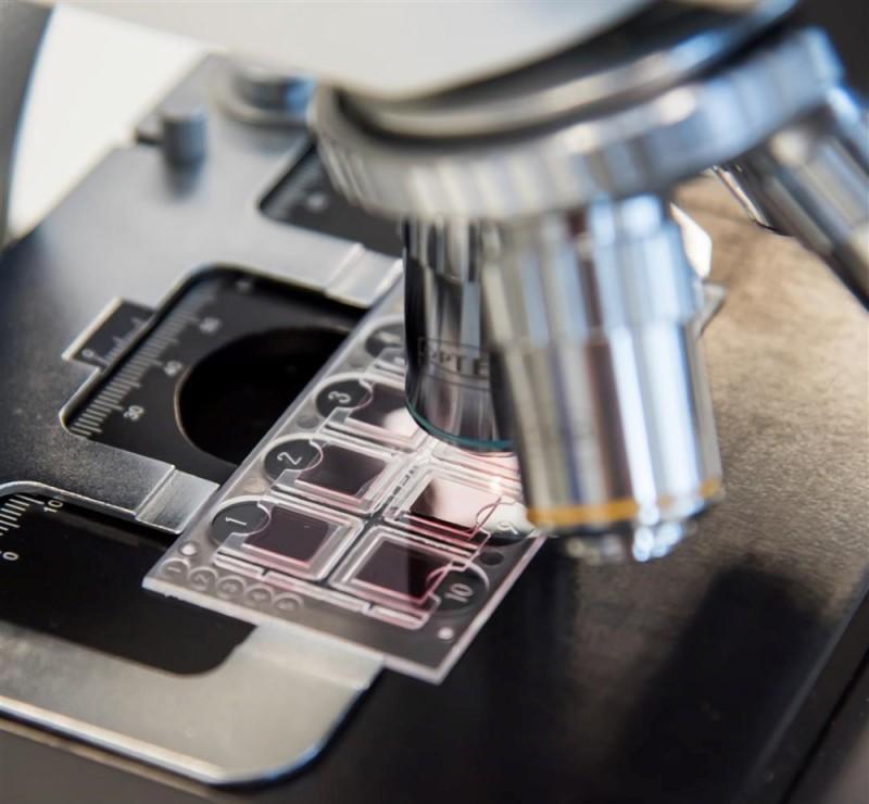 Инновационная Система подсчета клеток в биологических жидкостях Fast Read 102: быстрота, удобство, точность